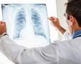 Абсцес легені: причини, симптоми, лікування фото