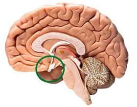 Аденома гіпофіза головного мозку фото