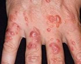 Актініческій дерматит: причини, симптоми, лікування фото