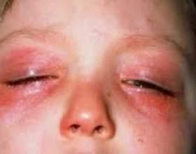 Алергія на очах, як виявляється? Як лікувати? фото