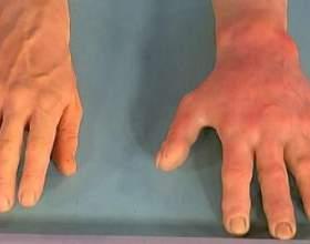 """Алергія на холод: неприємні симптоми на морозі С""""РѕС'Рѕ"""