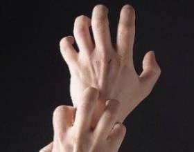 Алергія на руках, причини, лікування фото