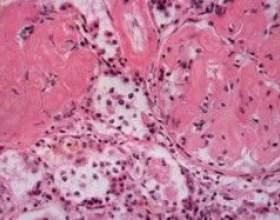 Амілоїдоз - симптоми і лікування. Амілоїдоз нирок, шкіри, легенів фото