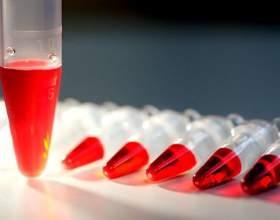 Аналіз крові на гормони щитовидної залози фото