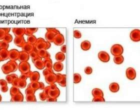 Анемія крові, що призводить анемію крові? фото