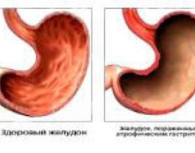Антральний атрофічний гастрит: причини, симптоми, лікування фото
