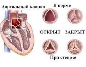 Аортальнийстеноз фото