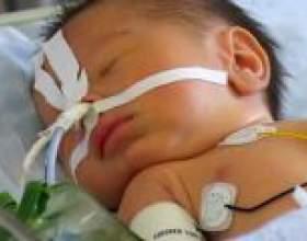 Артрезія стравоходу у новонароджених дітей фото