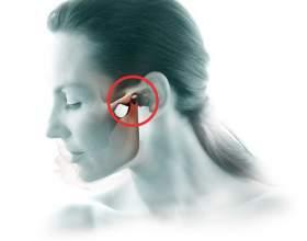 Артрит щелепно лицьової суглоба симптоми і лікування фото