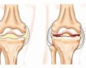 Артрит колінного суглоба: симптоми, причини, лікування фото