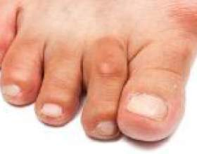 Артрит пальців ніг і стопи, симптоми і лікування фото