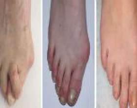 Артроз стопи: причини, симптоми, лікування фото
