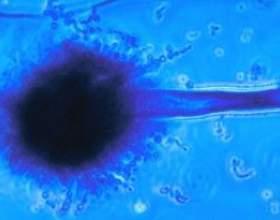 Аспергільоз - симптоми і лікування. Аспергільоз легенів фото