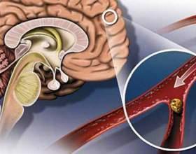 Атеросклероз судин головного мозку симптоми і лікування фото