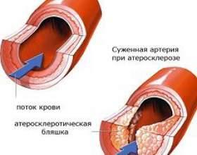Атеросклероз фото