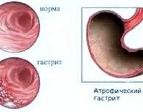 Атрофічний гастрит: симптоми, лікування фото