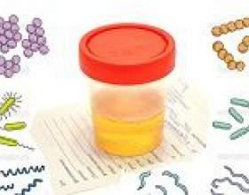 Бактерії в сечі (бактеріурія): причини, симптоми, лікування фото