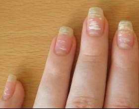 Білі плями на нігтях фото
