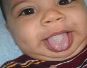 Білий наліт на язику немовля - причини, симптоми, лікування фото