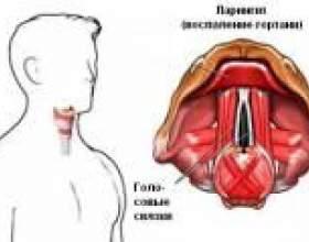 Біль в горлі при ковтанні через ларингіт фото