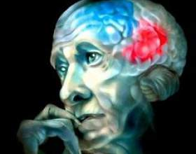 Хвороба альцгеймера фото