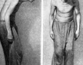 Виразкової хвороби шлунку фото