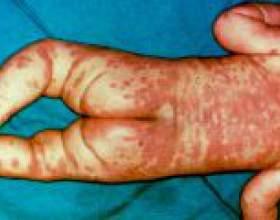 Хвороба кавасакі у дітей - причини, лікування фото