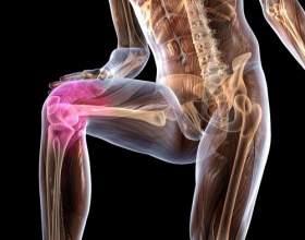 Хвороба кеніга колінного суглоба фото