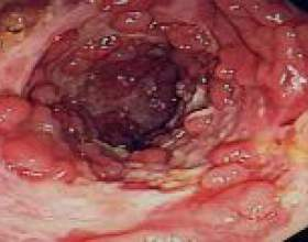 Хвороба крона: симптоми, діагностика фото