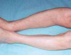 Хвороба педжета - причини, симптоми, лікування фото