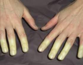 Хвороба рейно та синдром рейно фото