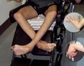 Хвороба вільсона-коновалова фото