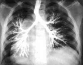 Бронхоектатична хвороба (бронхоектаз): причини, симптоми, і лікування фото