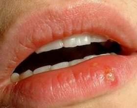 Часто буває герпес на губах. Які ефективні засоби від нього існують? фото