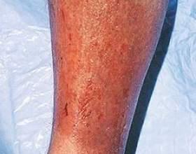 Чим небезпечний варикозний дерматит і чи можна його вилікувати самостійно? фото