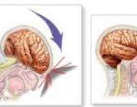 Черепно мозкова травма - наслідки, реабілітація фото