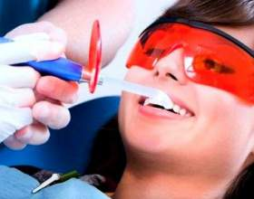 Чищення зубів ультразвуком: відгуки до і після фото
