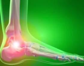 Що робити якщо болить гомілковостопний суглоб? фото