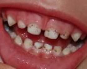 Що робити, якщо у дитини наліт на зубах? фото