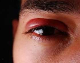 Що таке герпес очі? фото