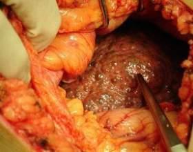 Цироз печінки - основні симптоми, види та лікування цироз фото