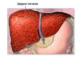 Цироз печінки: симптоми і лікування фото