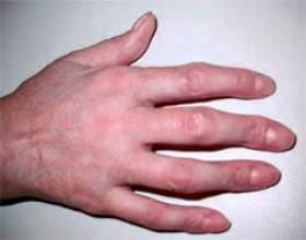 Деформація пальця фото