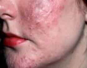 Демодекоз шкіри: причини, симптоми, лікування фото