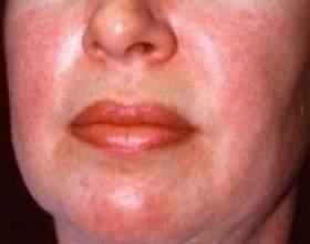 Дерматоміозит - причини, симптоми, діагностика та лікування фото