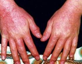 Діагностика та лікування алергічного дерматиту фото