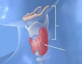 Дифузні зміни щитовидної залози фото