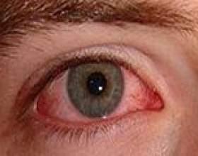 Дирофіляріоз: причини, симптоми, лікування фото