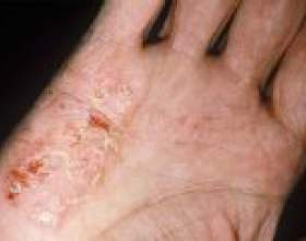 Дісгідротіческая екзема - причини, симптоми, лікування фото