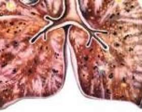 Дисемінований туберкульоз легень: симптоми, лікування фото